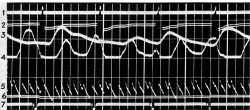 Figure 7. Darrow photopolygraph record. From Christian A. Ruckmick, The Psychology of Feeling and Emotion (New York/London: McGraw-Hill, 1936), p. 288.