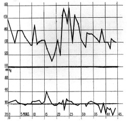 "Figure 14. Blood-pressure curve of ""a woman . . . typical of the Yankee women."" The variations in blood pressure represent the patient's state of mind. From George Van Ness Dearborn, ""Some Practical Notes on Blood-Pressure."" Medical Record 90 (1916): 490."