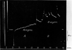 "Figure 17. Galvanometric tracings of calm and excited states. A: ""complete voluntary control""; B: ""she 'lets go'."" From A. D. Waller, ""The Measurement of Human Emotion and of Its Voluntary Control,"" Proceedings of the Royal Society of Medicine 13 (1920): 54."